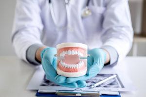 Comment devenir prothésiste dentaire ?